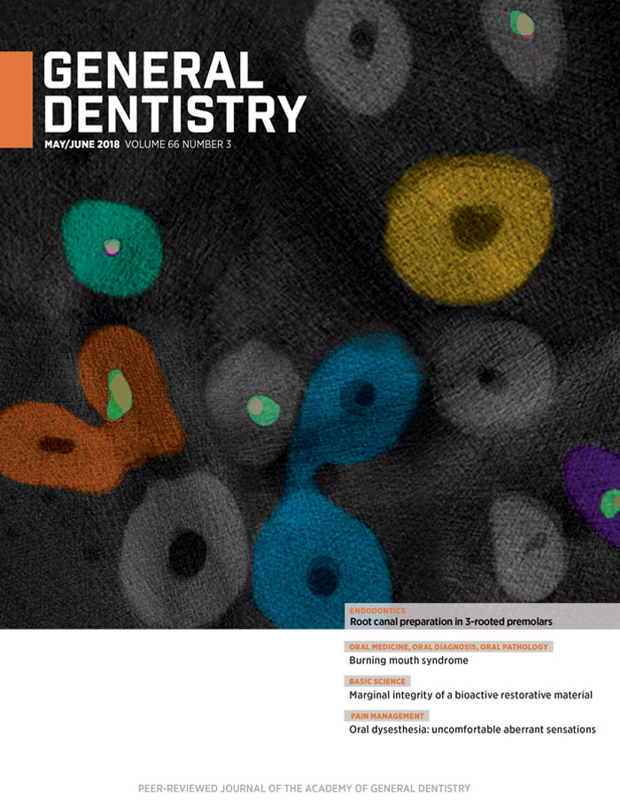 General Dentistry May/June 2018 Cover